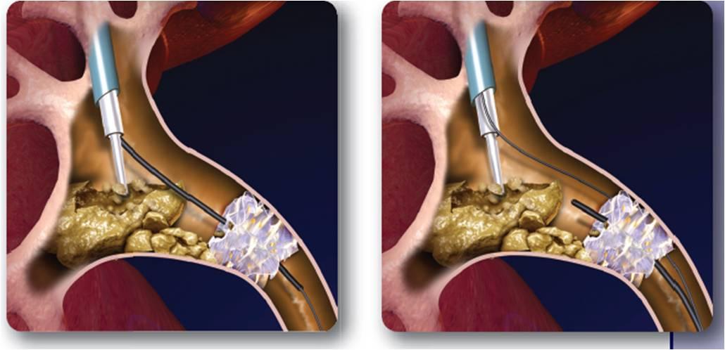 Cirugia laser para Cálculos Renales – Láser holmium