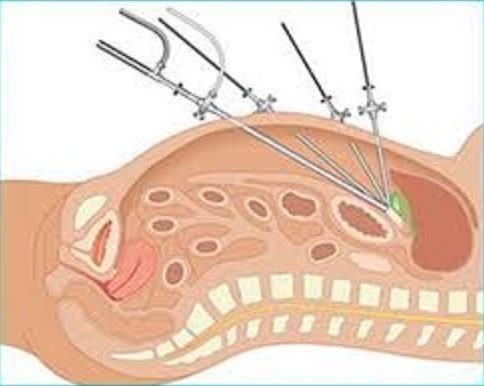 Pielolitotomia Laparoscópica