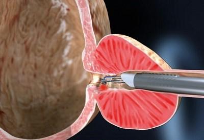 cirugia-laser-para-prostata-laser-holmiun