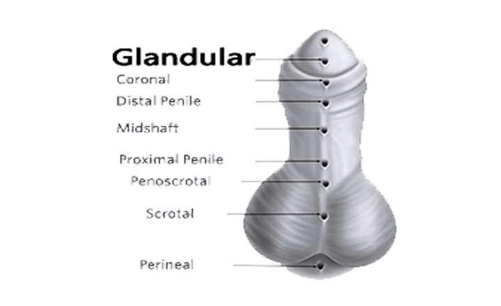 hipospadia glandular